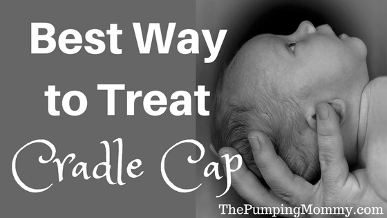 how-to-treat-cradle-cap