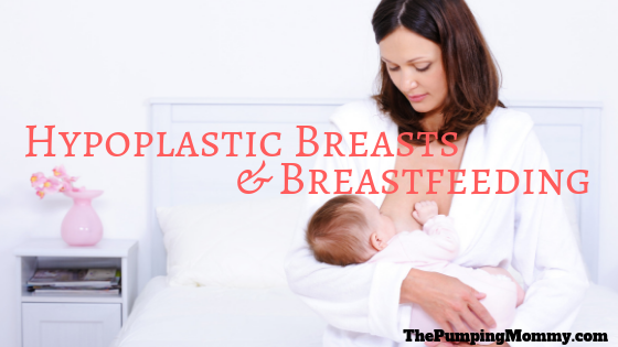 Hypoplastic Breasts and Breastfeeding
