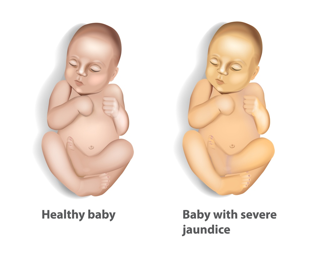 breast-milk-jaundice-and-breastfeeding